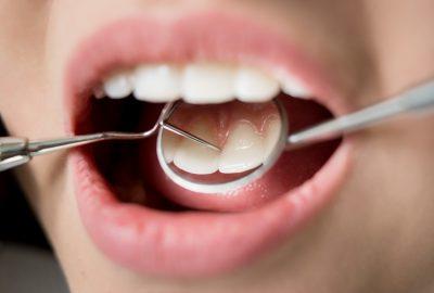 定期檢查牙齒